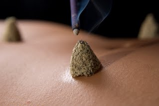 moxa, moxibustion, moxabustion, breech, breech moxa, acupuncturist, breexh acupuncture, acupuncture for breech, acupuncture harley street, harley street acupuncture, traditional acupuncture centre, london acupuncture clinic, marylebone, acupuncturist  harley street, harley street acupuncturist, tcm acupuncturist, traditional chinese medicine, BACC, british acupuncture council, NHS, NHS acupuncture, NHS acupuncturist, central london acupuncturist, central london acupuncture, pruhealth, aviva, complementary therapies, complementary medicine, complimentary medicine, simply health, bupa,  private medical insurance, medical insurance, private insurance, Nuffield Health